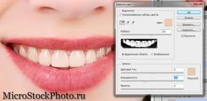 зубы 5